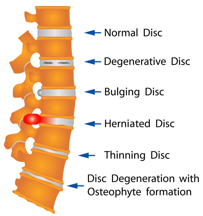 Are Bulging Spinal Discs Normal Dr Stefano Sinicropi