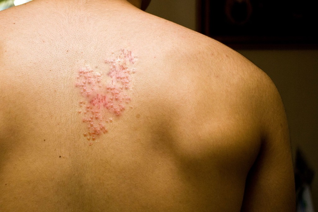 Shingles, Back Pain & Surgery | Dr. Stefano Sinicropi MD