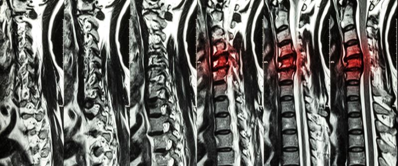 The 4 Stages Of Spinal Disc Herniation Minneapolis Back