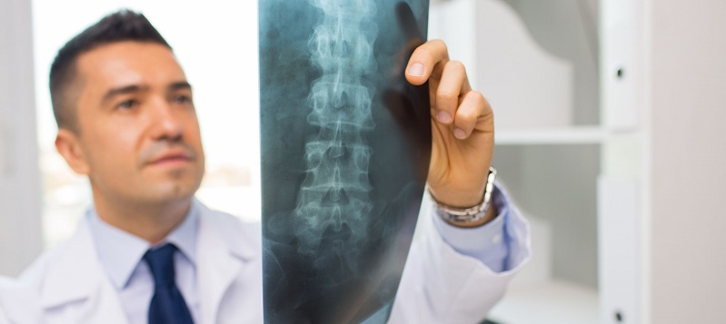 Spine Surgery Insurance