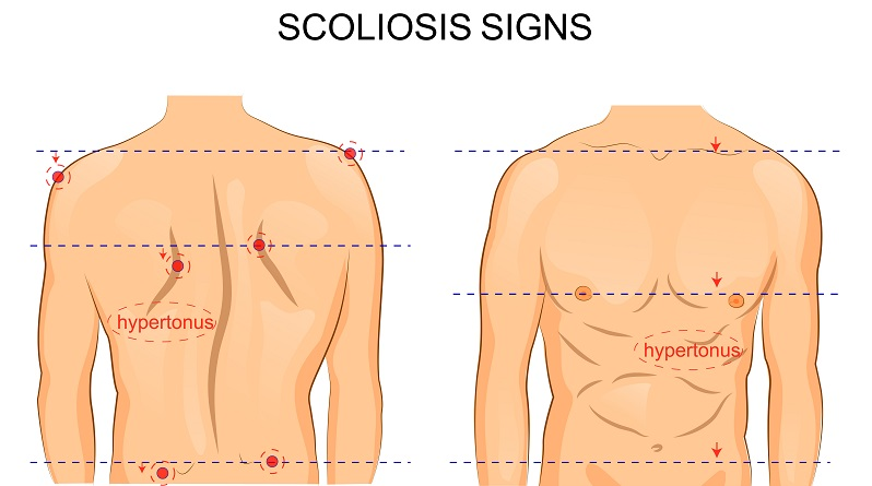 The Benefits Potential Drawbacks Of Scoliosis Surgery Dr