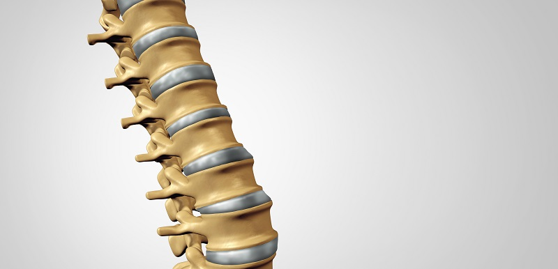Spine Diagnostic